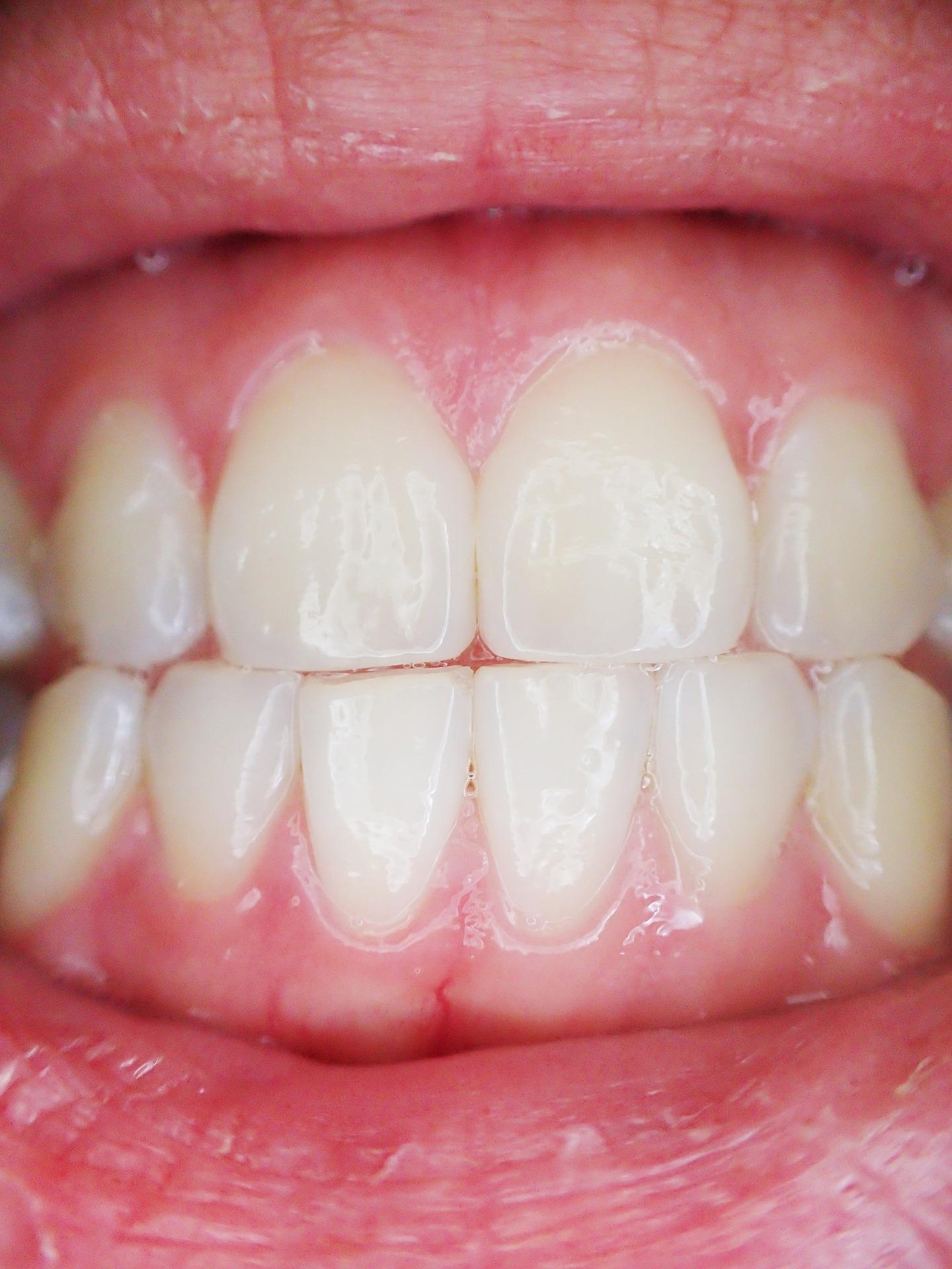 Dlaczego bolą zęby? Przyczyny i sposoby radzenia sobie z bólem